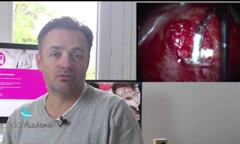 Chirurgie endodontique et endodontie chirurgicale