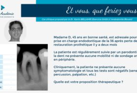 #28 Case-based teaching n°4 – L'endo avant l'implant !