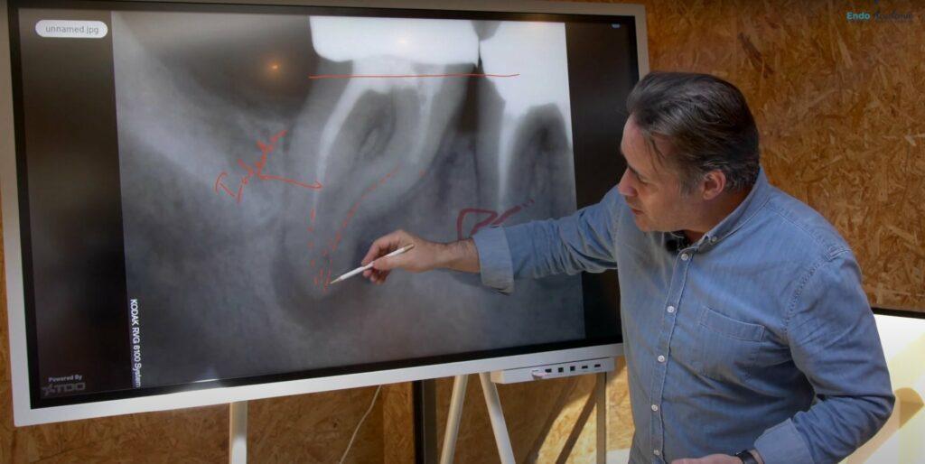 Réponse d'expert expliquer endodontie patient