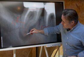 #69 – Comment expliquer simplement à un patient un problème d'endodontie ?